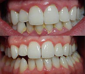 gum gingivitis
