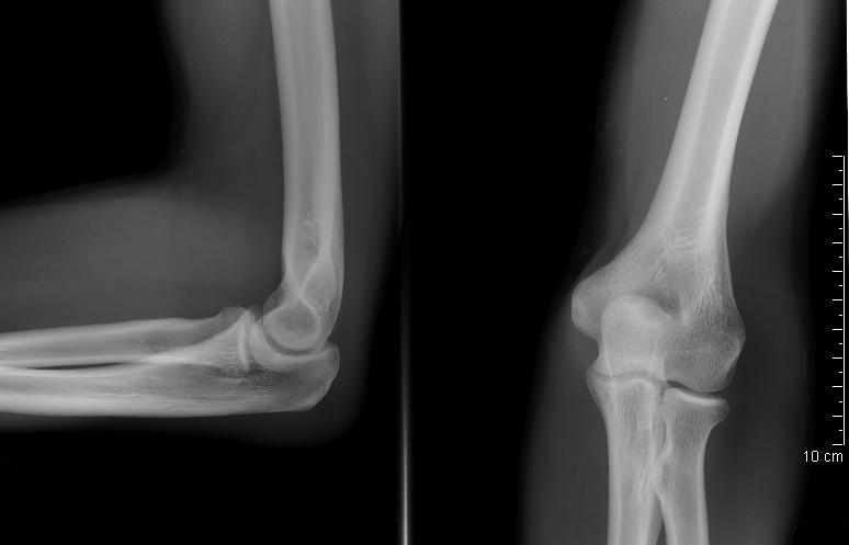 X Ray Broken Elbow Sore Elbow due to Inju...