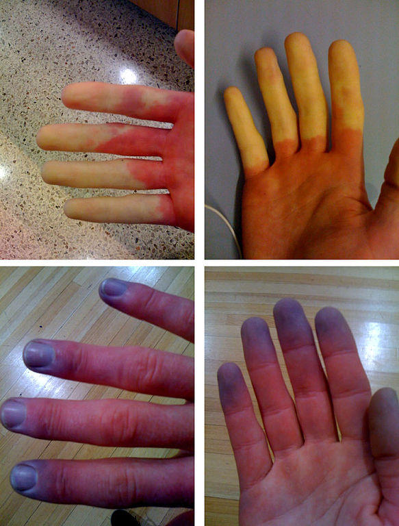 Blue Hands and Fingers Causes and Symptoms | Healthhype.com