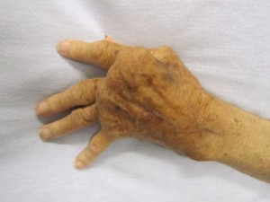 Rheumatoid Arthritis Deformity