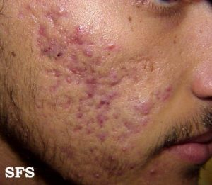 acne of the face and beard area