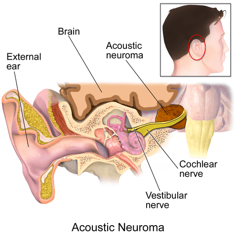 acousticneuroma1