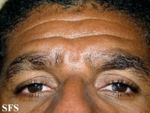 Alopecia Areata Eyebrows