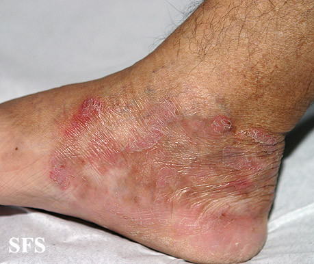 Tinea infections  Ringworm  Jock itch  MedlinePlus