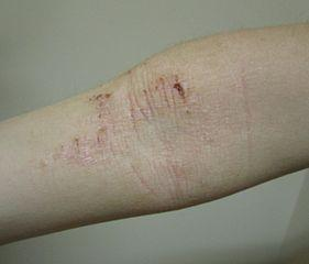 atopic dematitis elbow