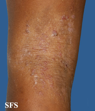 atopic dermatitis limb