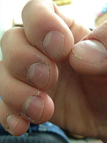 The Best Way To Avoid Infections Is Stop Biting Nails However It Often Easier Said Than Done Here Are Some Tips Reduce Chances Of An