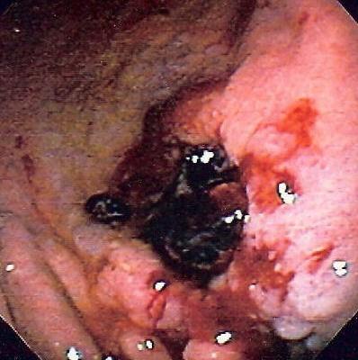 bleeding ulcer