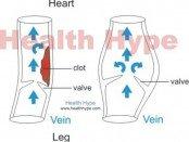 bulging veins