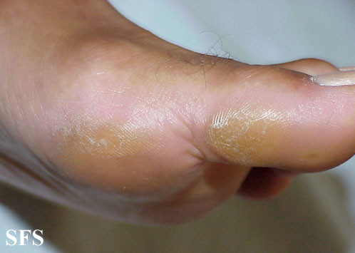 Heel To Toe Foot File >> Corns and Calluses (Feet) Causes, Pictures, Treatment ...