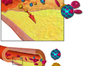 cholesterol atherosclerosis
