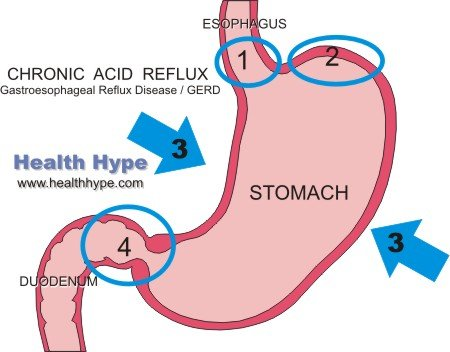 Chronic Acid Reflux