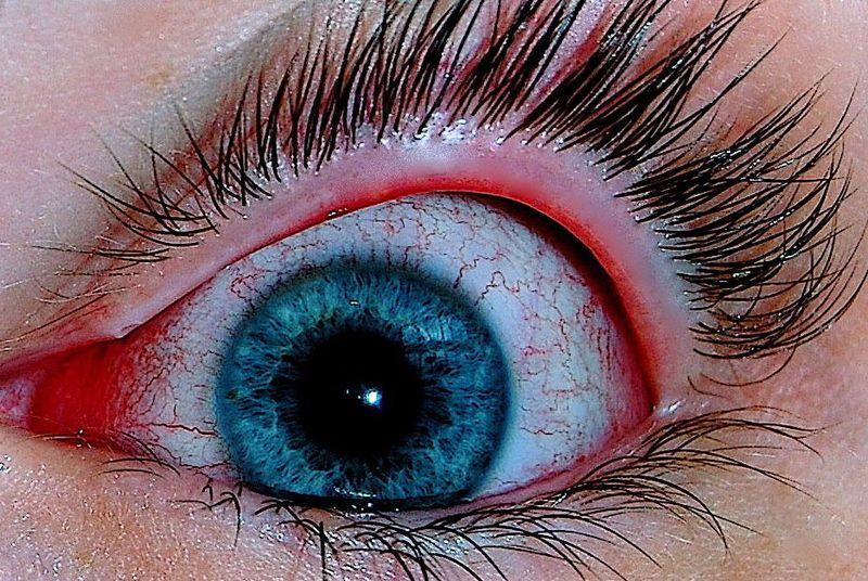 Eye pain and painful eye socket causes pictures other symptoms conjunctivitis pink eye ccuart Gallery