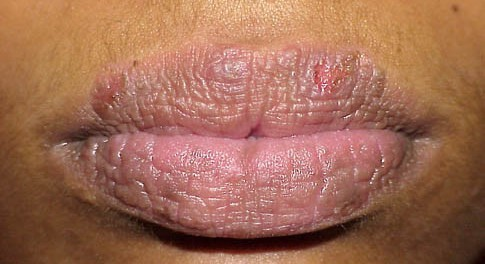 contact dermatitis lips