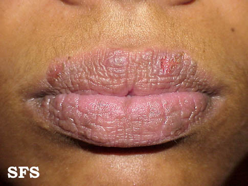 Pictures Of Rash Around The Mouth