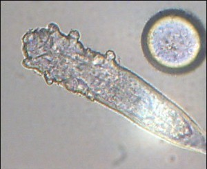 """demodex """"width ="""" 300 """"height ="""" 245 """"srcset ="""" http://www.healthhype.com /wp-content/uploads/demodex-300x245.jpg 300w, http://www.healthhype.com/wp-content/uploads/demodex.jpg 352w """"sizes ="""" (max-width: 300px) 100vw, 300px """"/ ></p><h2 style="""