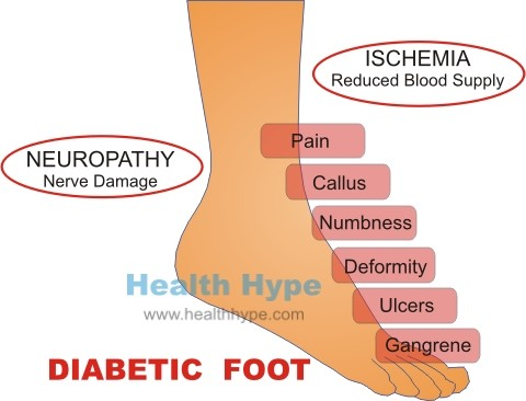 Diabetic Foot Pain Ulcers Care And Other Problems Healthhype Com