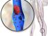 dvt clot