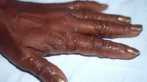 dyshidrotic_hands