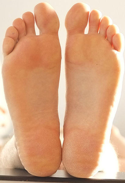 Cellulitis (Infection), Pictures and Prevention of ... Стопы Рисунок