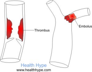 Embolus vs Thrombus