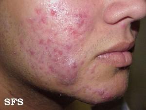 face acne