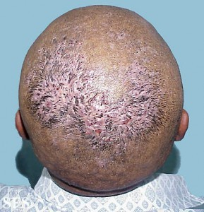 Scalp Infections Causes Types Pictures Healthhype Com