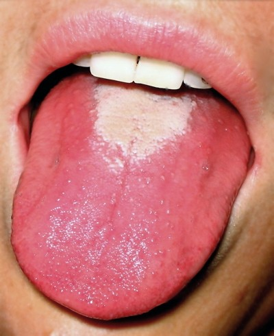 Tongue Coating (Furry, Abnormal Color) Causes and Pictures ...