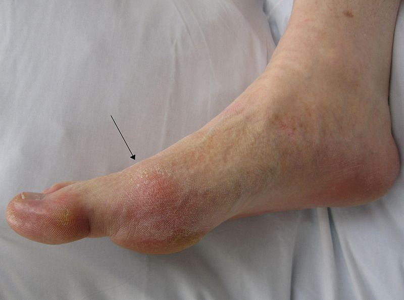 Gout of the Big Toe [19659010] Imagen de la gota del dedo gordo de Wikimedia Commons </strong></em></p><div style=