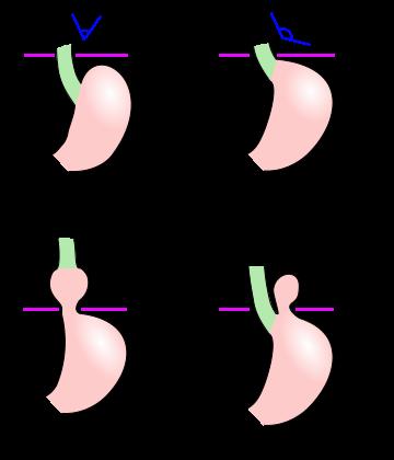hiatal hernia