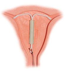 hormonal IUD