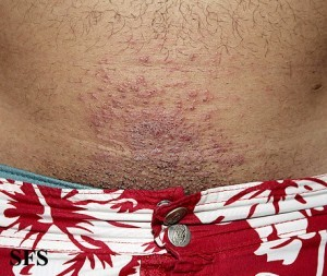 Irritant contact dermatitis on the abdomen
