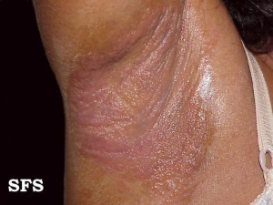 Irritant contact dermatitis on the armpit