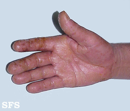 Irritant contact dermatitis on the hand