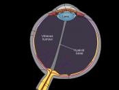 inside eye