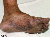 kaposi_sarcoma_foot