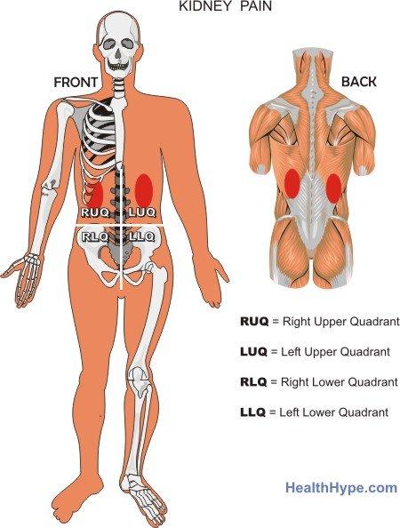 Kidney Troubles Groin Ache