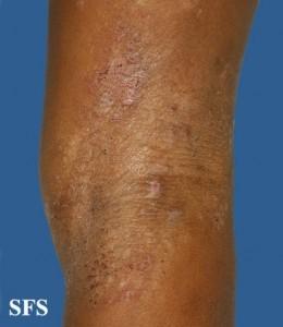 knee eczema