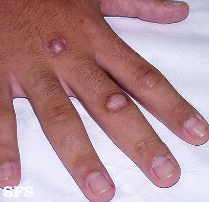 Pain In My Ring Finger
