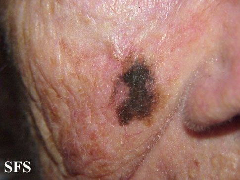 Lentigo maligna - melanoma on the face