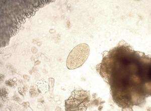 liver worm eggs
