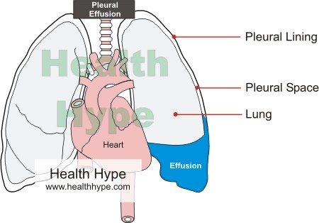 Fluid around the Lung
