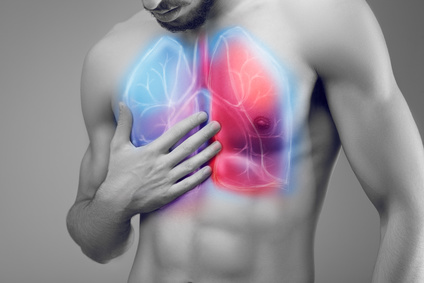 Pneumonie à infection pulmonaire &quot;width =&quot; 424 &quot;height =&quot; 283 &quot;/&gt;</p><ul><li> <a href=