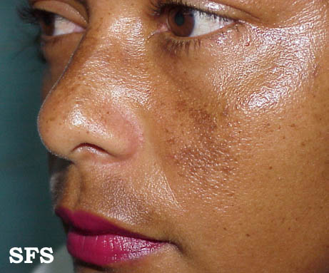 Melasma, Chloasma Pictures (Dark Skin Pigmentation on Face