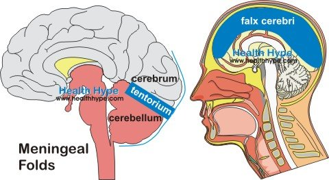 different types of brain herniation