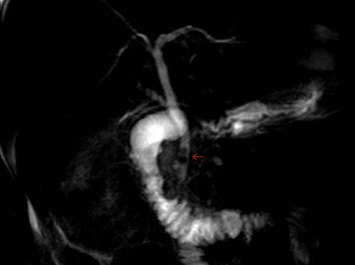Gallsones in the bile duct - choledocholithiasis