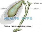 gallbladder mucocele hydrops
