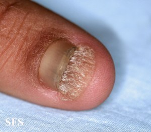 Picture of onychomycosis