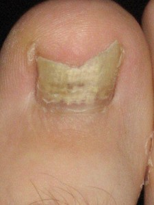 big toe nail fungus