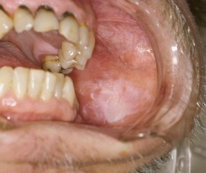 oral leukoplakia